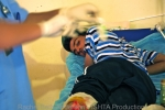 An injured fighter looks on as a doctor prepares to fix a shrapnel wound