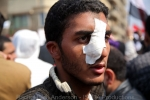 Injured protestor who was hit by rocks by pro Mubarak supporters